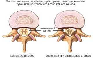 Стеноз позвоночного канала в поясничном отделе симптомы и лечение