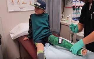 Что делать если ребенок подвернул ногу и опухла косточка ступни