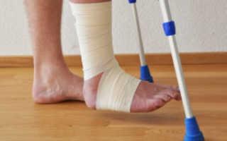 Можно ли не накладывать гипс при переломе лодыжки?