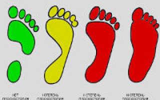 5 признаков плоскостопия 1 степени и какие бывают типы