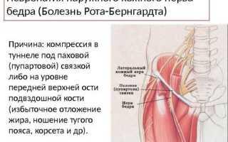 Лечебная гимнастика и другие способы лечения синдрома Рота-Бернгардта