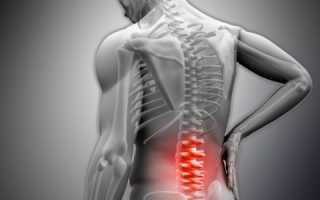 Субхондральный остеосклероз замыкательных пластинок что это такое