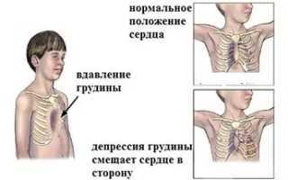 Как убрать ямку на грудной клетке. Коррекция, специальные упражнения при впалой грудной клетки