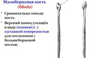 Перелом малоберцовой кости код по МКБ-10 сколько ходить в гипсе реабилитация