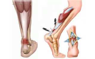 Лечение при повреждении связок голеностопного сустава