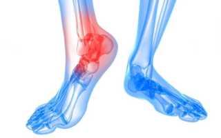 Что такое подагрический артрит чем и как лечить патологию