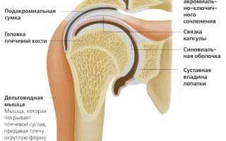Симптомы артроза плечевого сустава и признаки 1-3 степени