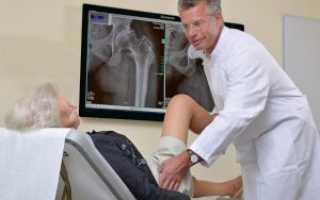 Если болит тазобедренный сустав – к какому врачу идти, в каких случаях нужно немедленно обращаться