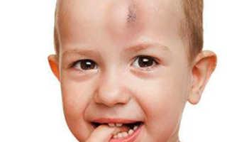 Симптомы и лечение ушиба мягких тканей головы