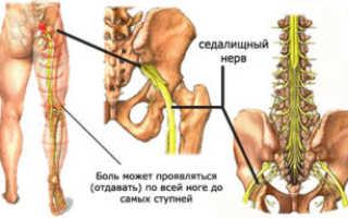 Болит тазобедренный сустав с левой стороны и отдает в ногу