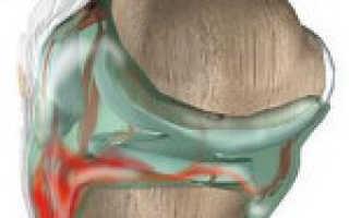Артроз правый голеностопного сустава гемартроз