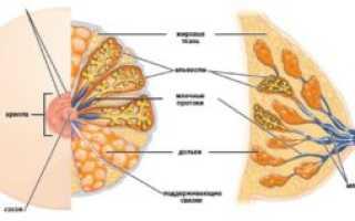 Что такое образование в молочной железе аваскулярное солидное железистое и листовидная опухоль