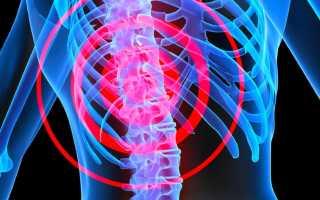 Какие боли при остеопорозе