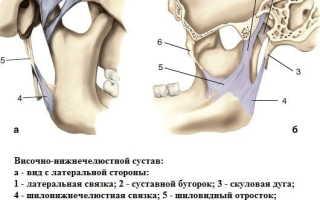 Воспаление челюстного сустава симптомы лечение