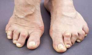 Полиартрит стопы симптомы и лечение фото