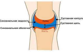 Как избавиться от жидкости в коленном суставе в домашних условиях