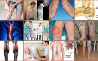 Препарат дельта для лечения суставов цена