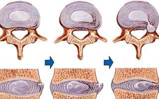 Упражнения побеждающие грыжу позвоночника в шее
