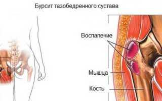 Почему болит тазобедренный сустав с левой стороны – причины возникновения боли