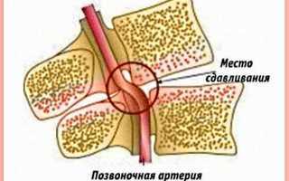 Быстро снять головокружение при шейном остеохондрозе