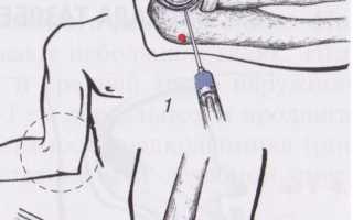 Как делается блокада локтевого сустава