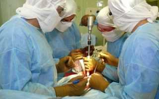 Артроскопия коленного сустава бесплатно по ОМС в 2020 году
