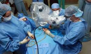 Операция на позвоночнике сколиоз 4 степени