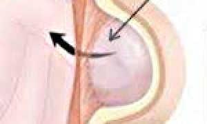 Спигелиевая линия живота анатомия