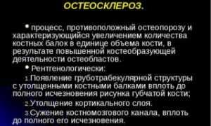 Очаги остеосклероза в костях таза