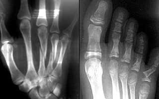 Как лечить пальцы после перелома
