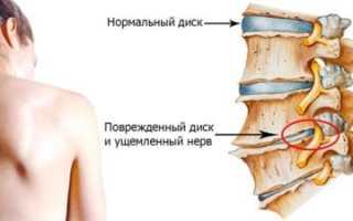 Помогают ли обливания холодной водой при остеохондрозе