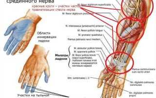Невралгия срединного нерва симптомы