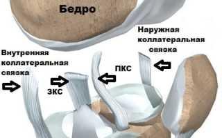 Коллатеральная связка коленного сустава