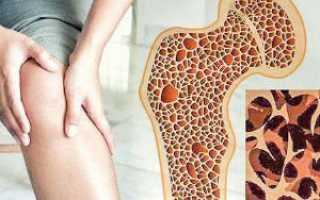 Препарат от остеопороза 1 раз в год