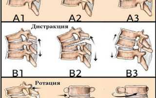 Перелом шеи: лечение и последствия перелома шейного отдела позвоночника