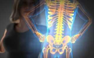Остеопороз грудного отдела позвоночника симптомы