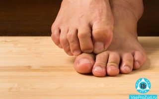 Сыпь на ногах в виде красных точек у взрослого с зудом и без лечение причины