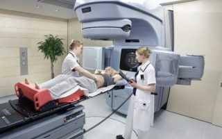Особенности проведения облучения после операции при раке молочной железы