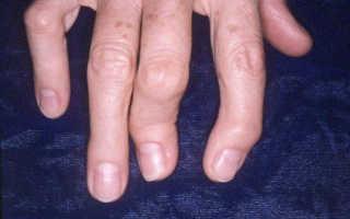 Полиостеоартроз, что это такое и как лечить