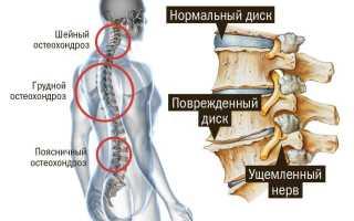 Правильная гимнастика при остеохондрозе шейно-грудного отдела позвоночника