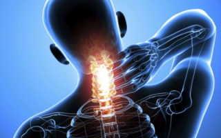Почему возникает при остеохондрозе позвоночника боль и какие средства помогут ее снять