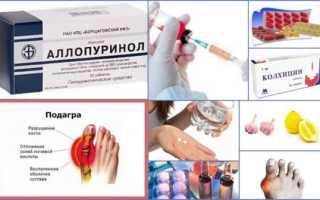 Лекарства для снижения мочевой кислоты при подагре