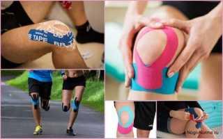 Схема тейпирования коленного сустава при артрозе