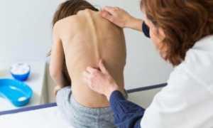 У подростка болит спина в области лопаток