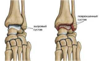 Артрит голеностопного сустава: симптомы и лечение, причины, виды, фото – лечение