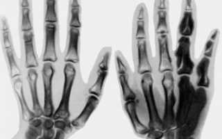 Что такое остеосклероз? Что такое остеосклероз и как лечить уплотнение костей