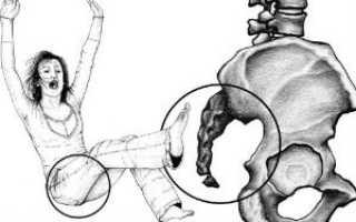 Ушиб копчика при падении: лечение, симптомы и последствия
