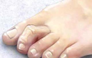 Молоткообразная деформация пальцев ног лечение народными средствами в домашних условиях