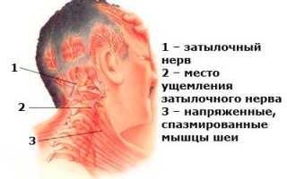 Невралгия затылочного нерва по мкб 10