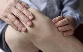 Гигрома коленного сустава фото причины появления симптомы и лечение